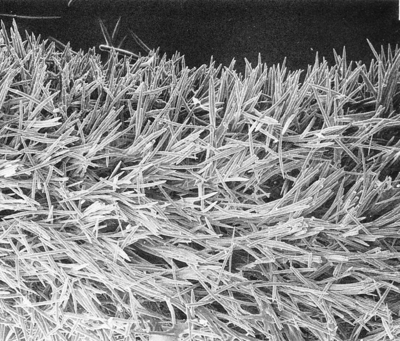 Sponge skeleton from scanning electron microscopy of Cymbastela stipitata